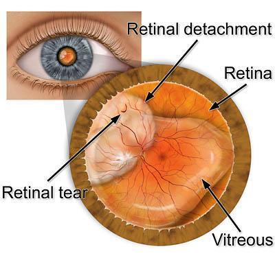จอประสาทตาเสื่อม โรคร้ายแรงที่สามารถรักษาได้